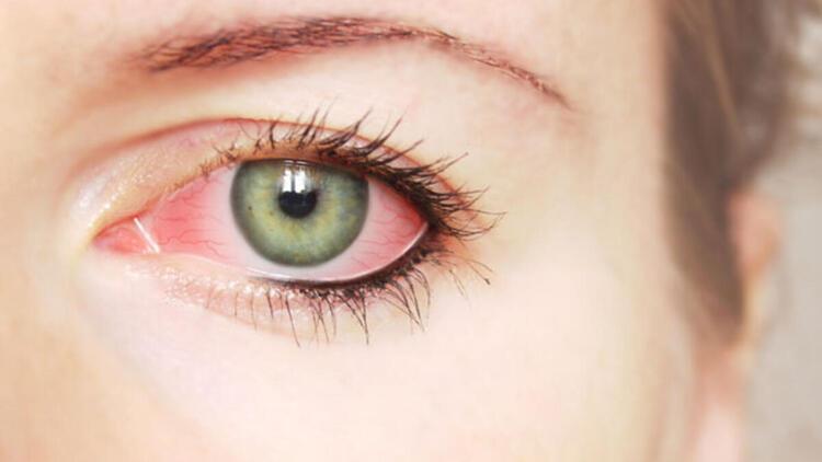Göz hijyeni için en pratik ve etkili yöntem nedir